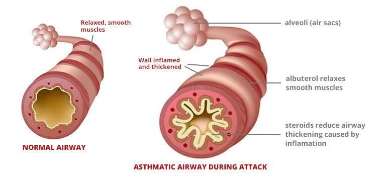 Nebulized Lasix For Exercise Asthma